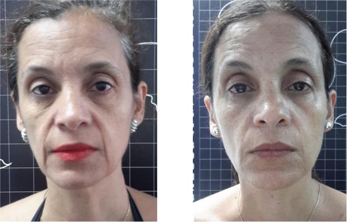 Antes e Depois da Criofrequência no Rosto - 4 sessões