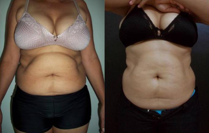 Antes e Depois da Criofrequência na Barriga - 8 Sessoes de Crio de 20min