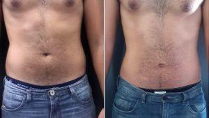 Antes e depois da Criofrequência - homem