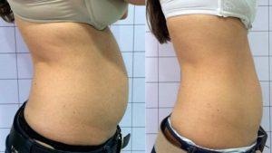 Antes e depois da Criofrequência na barriga