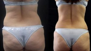 Antes e depois da Criofrequência nas costas e bumbum