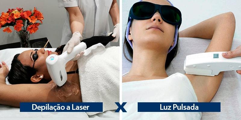 Diferenças entre Depilação a Laser e Luz Pulsada