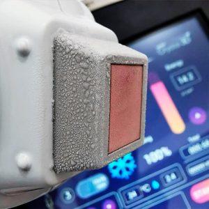 Tecnologia Cryocooling do Laser Crystal 3D