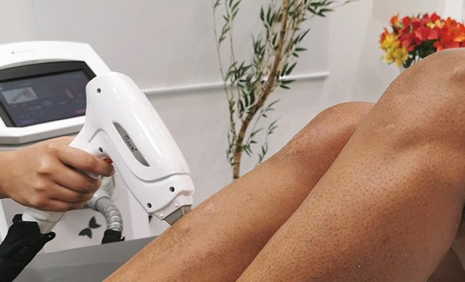Benefícios da depilação a laser com o Crystal 3D