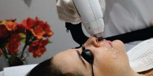 5 motivos para optar pela depilação a laser no rosto