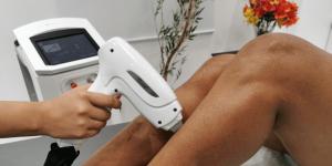 Na imagem: aplicação do laser de depilação na perna da mulher