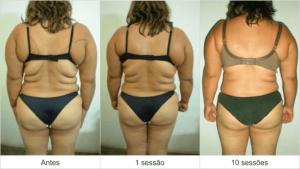 Resultados Dermohealth - antes e depois 1