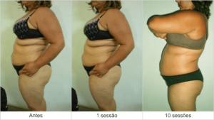 Resultados Dermohealth - antes e depois 2