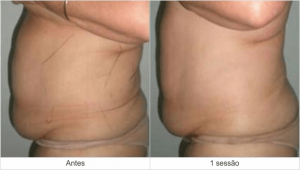 Resultados Dermohealth - antes e depois 3