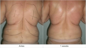 Resultados Dermohealth - antes e depois 4