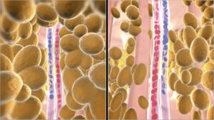 Como funciona a tecnologia Dermohealth - Segundo efeito