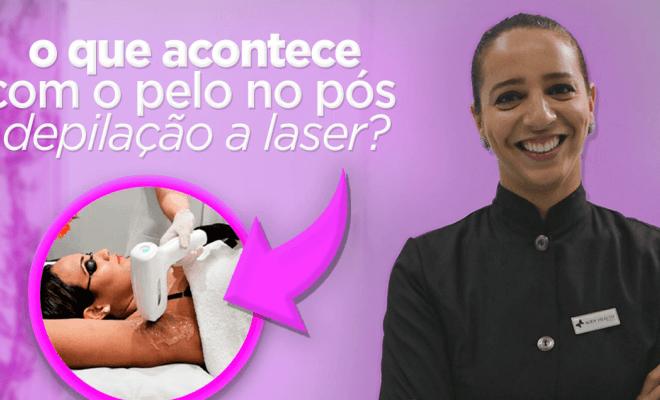 Descubra o que acontece com o pelo no pós depilação a laser