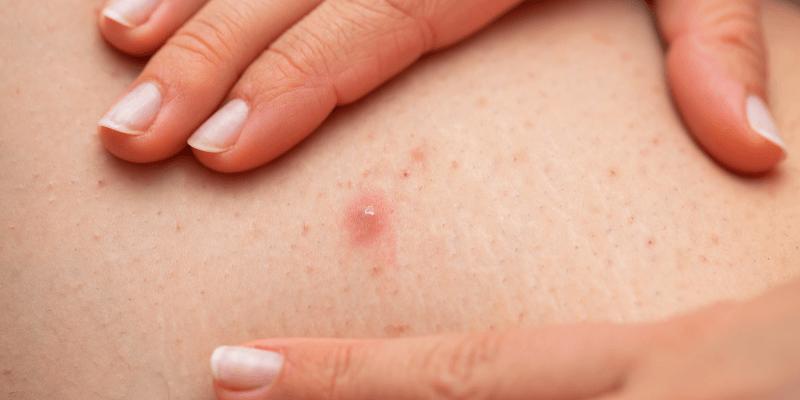 O que é Foliculite e como a depilação a laser pode ajudar