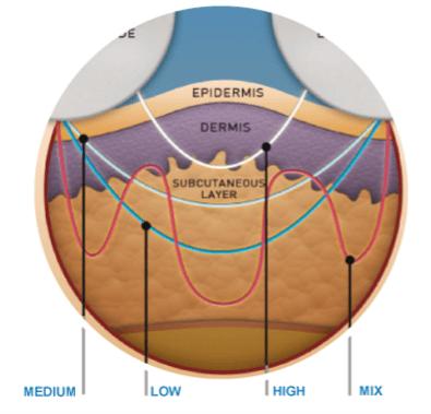 mecanismo de ação da criofrequência no colágeno estrutural
